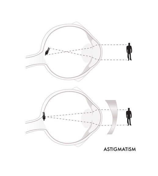 Glassesgallery lens info image - Astigmatism