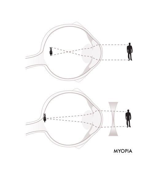 Glassesgallery lens info image - Myopia